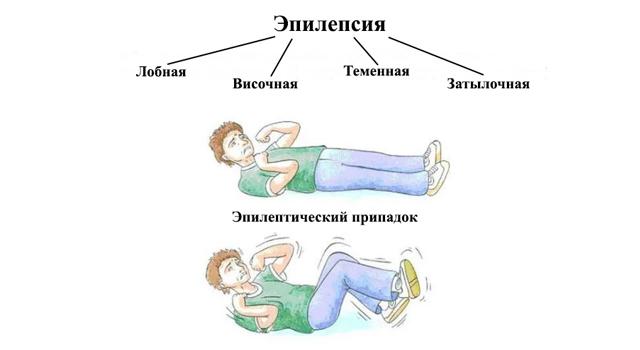 Эпилептолог в Воронеже