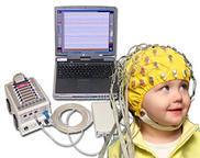 elektroencelogramma